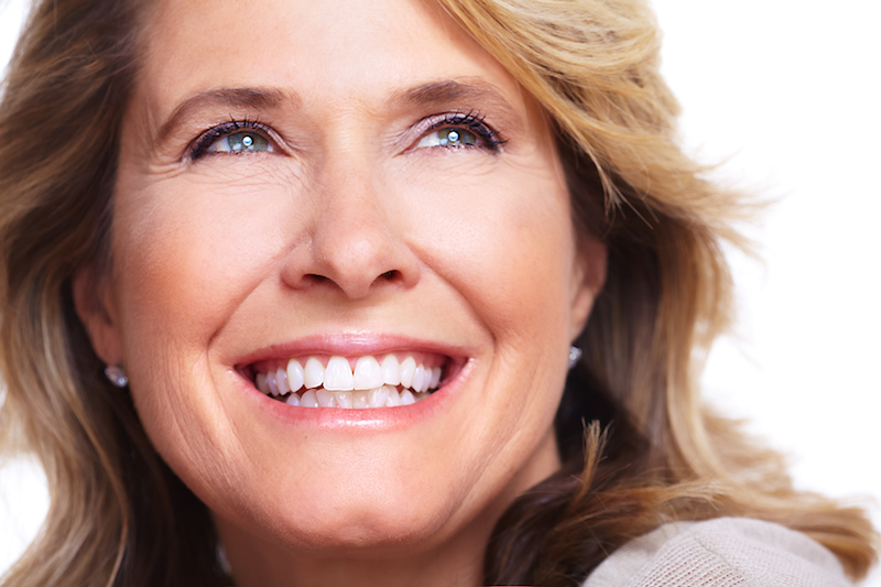 Older women with a smile makeover
