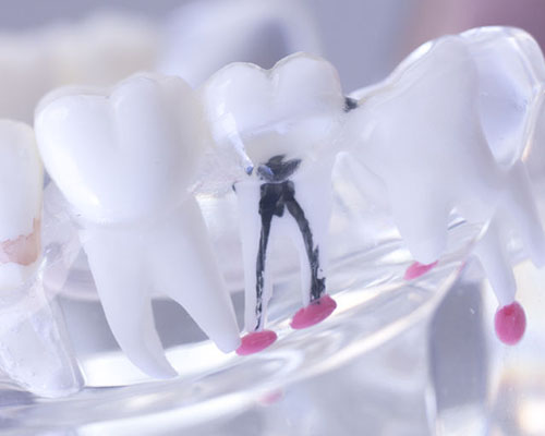 Image of a root canal in a model.