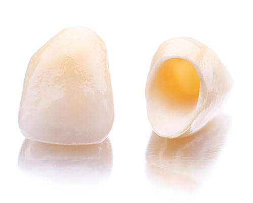 Image of two dental crowns used in restorative dentistry