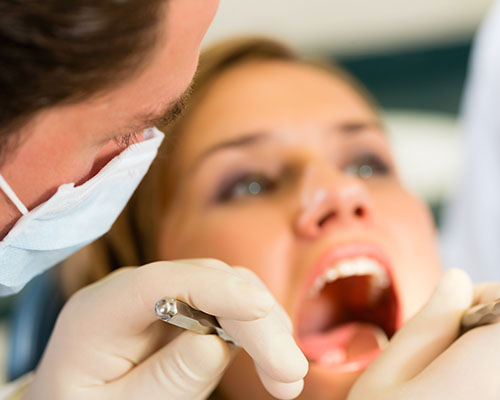 Image of Composite Fillings Exam