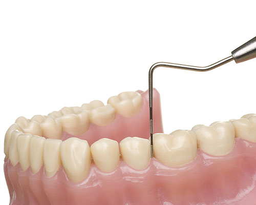 Bridge Street Dentistry Scaling and Planing