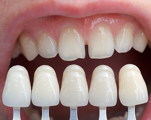 Porcelain Veneers lined up in front of chipped teeth.
